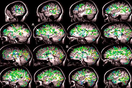Cérebro da mulher no scanner