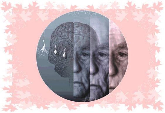Alzheimer - Esperança