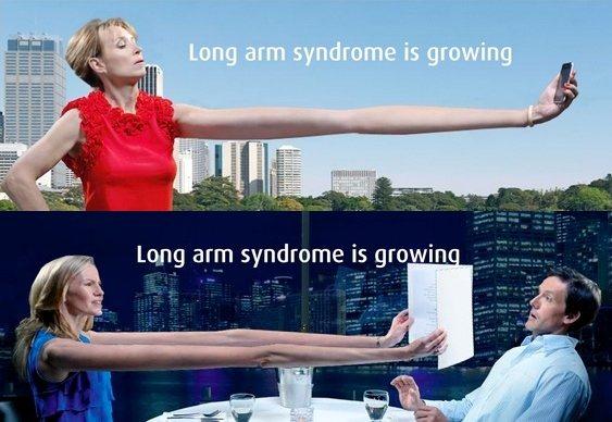 Síndrome do braço comprido